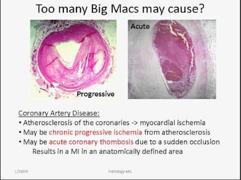 cardiac pathology part 5