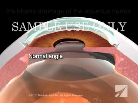 Diagnosis and Treatment of Closed Angle Glaucoma