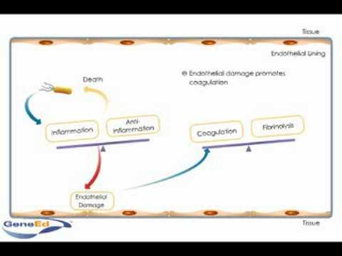 Sepsis development and progression