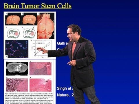 Alfredo Quiñones-Hinojosa Part 1: Brain Tumors