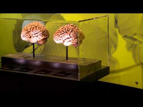First Look at Brain: The Inside Story