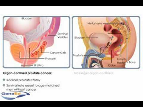 Organ-confined prostate cancer