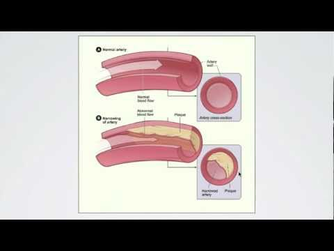 055 Regulating Peripheral Resistance - Part 1