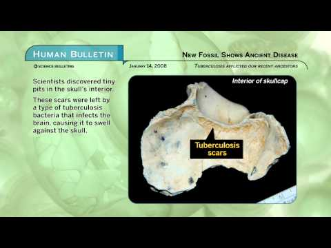 Science Bulletins: New Fossil Show Ancient Disease