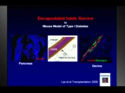 Islet Cell Transplants - A New Approach: Pamela Itkin-Ansari, Ph.D. at TEDxDelMar