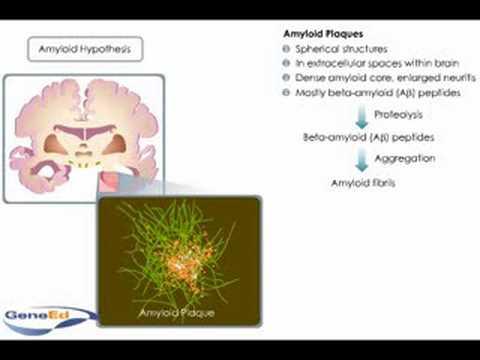 What causes neuronal death in Alzheimer's disease.