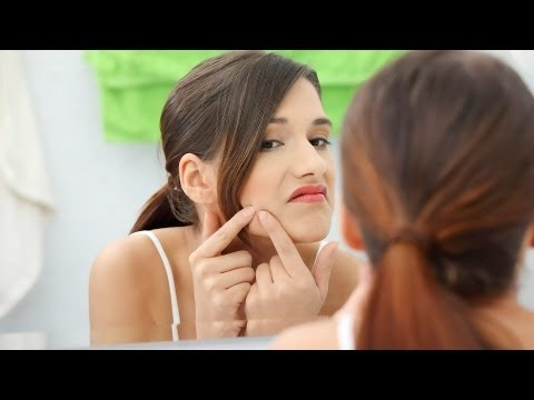 How to Get Rid of Acne | Natural Skin Care