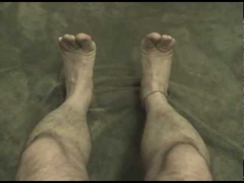 Peterzell's Phantom Limb Mirror Video: Illusory (egocentric) locus of control - 6 -  bilateral Toes