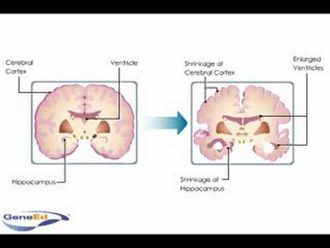 Alzheimer's Disease Neuropathology