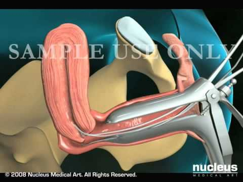 Endometrial Biopsy of the Uterus