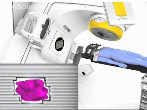 Machine zaps untreatable cancers