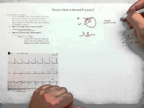 ECG Library Supplement (Hennager AP2 ECG Lab).mov