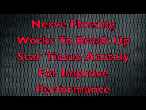 Nerve Flossing Technique