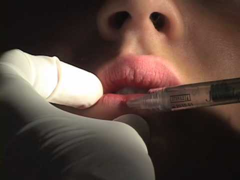 What Happens During a Juvederm Lip Injection