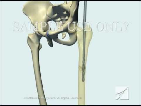 Femoral Fracture Fixation Surgery: Intramedullary Nail