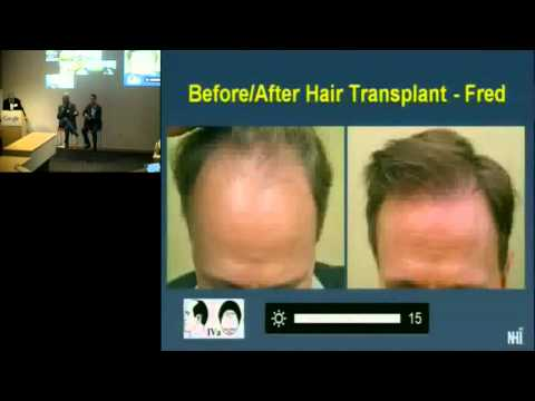 Health@Google Series: Hair Loss and Hair Restoration