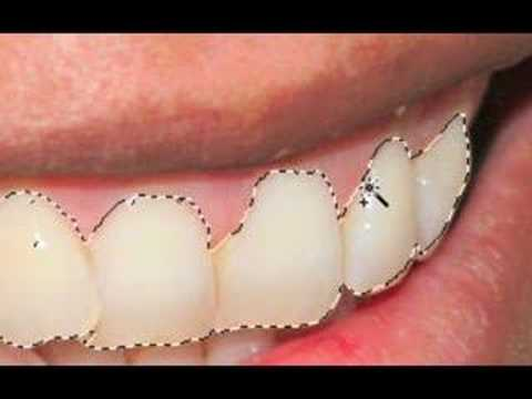 IceflowStudios Design Training - Brighten Teeth in Photoshop!