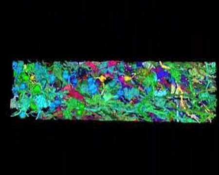 3D digital reconstruction of Brainbow cerebellum