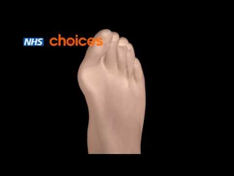 Bunions animation