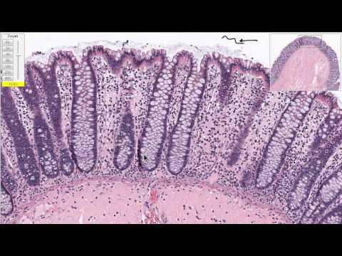 Normal Colon Tissue