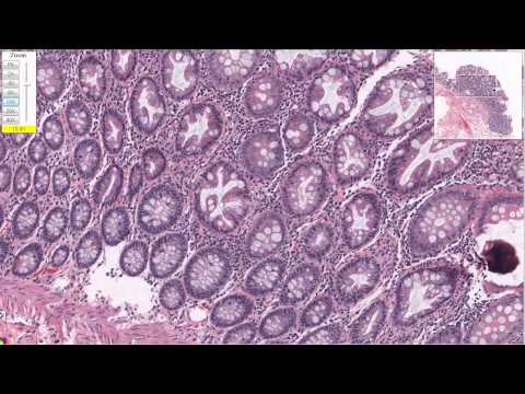 Hyperplasia in Colon Tissue