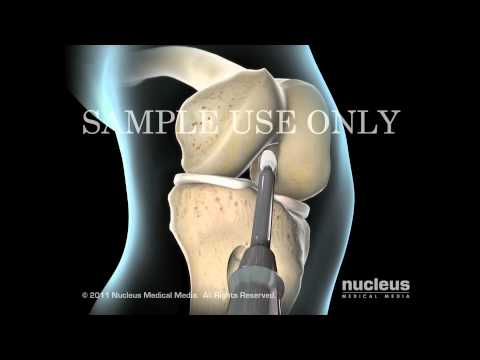 Knee Surgery: Torn ACL