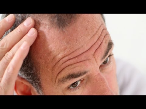 Pros and Cons of Propecia (Finasteride) | Thinning Hair and Baldness