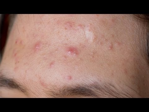 Skin Care: Acne / What Other Acne Medications Are There Besides Accutane?