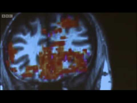 Brain scan results - Making of Me: John Barrowman - BBC