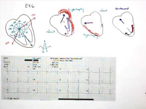 12 Lead EKG Part 5 QRS Axis