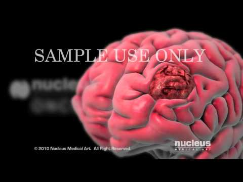 Nucleus Oncology (Cancer) Animation Demo