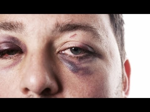 How to Treat a Black Eye | First Aid