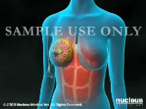 UAB Birmingham Alabama Breast Cancer Surgery