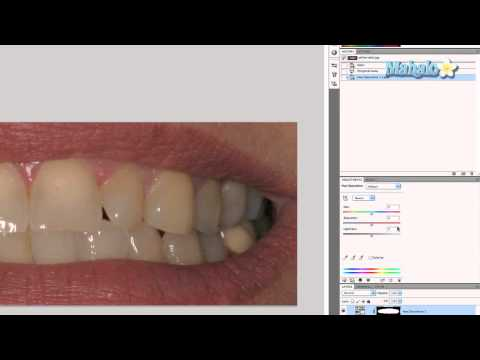 Photoshop Tutorial - Whiten Teeth