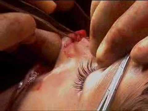 Nose Reconstruction - BBC
