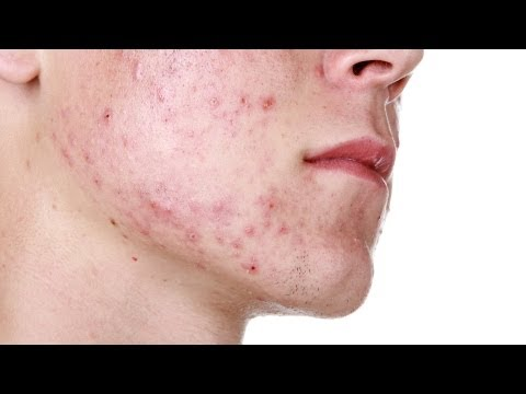 Skin Care: Best Products for Severe Acne / Tips to Control Severe Acne
