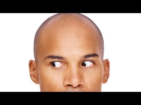 Causes of Hair Loss | Thinning Hair and Baldness