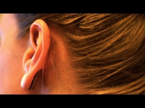 Ear Problems: Causes of Ringing in the Ears (Tinnitus)