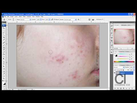 Photoshop tutorial: How to remove acne / spots.