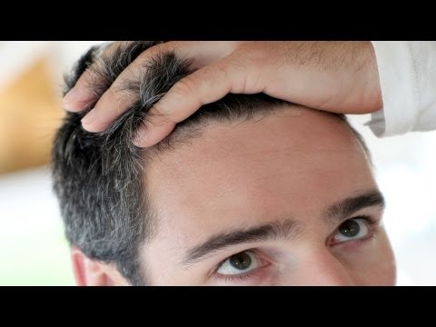 Who Is a Good Candidate for a Hair Transplant? | Thinning Hair and Baldness