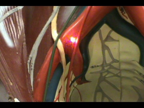 Torso Model - Iliac Arteries