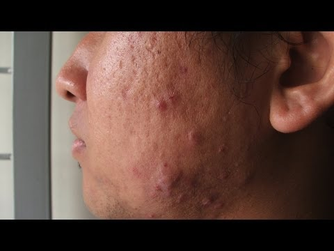 Skin Care: What Is Cystic Acne?