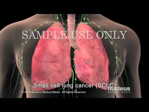 Small Cell Lung Cancer Staging