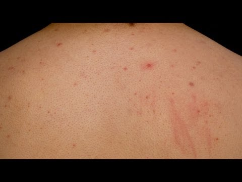 Skin Care: How to Get Rid of Back Acne (Bacne) and Chest Acne
