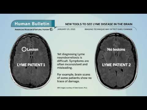Science Bulletins: New Tools Search for Lyme Disease in Brain