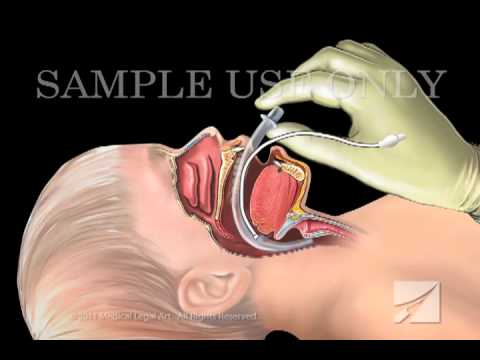 Tracheal Intubation: Laryngeal Mask Airway Device