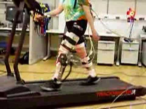 Walkers take artificial ankle in their stride 2