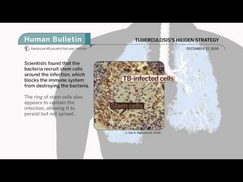 Science Bulletins:Tuberculosis's Hidden Strategy