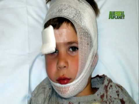 When Animals Strike - Coyote Attacks Boy