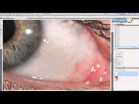 Photoshop Tutorial - Whitening Eyes
